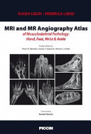 MRI and MR Angiography Atlas of Musculoskeletal Pathology: Hand, Foot, Wrist & Ankle