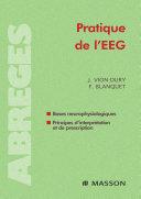 Pdf Pratique de l'EEG Telecharger