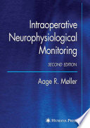 Intraoperative Neurophysiological Monitoring Book PDF