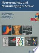 Neurosonology and Neuroimaging of Stroke