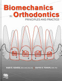 Biomechanics in Orthodontics