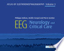 EEG   Neurology and Critical Care