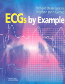 Cover of ECGs by Example