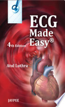 ECG Made Easy