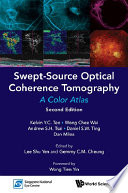Swept Source Optical Coherence Tomography A Color Atlas Second Edition  Book PDF