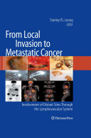 Pdf From Local Invasion to Metastatic Cancer