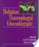 Multiplane Transesophageal Echocardiography