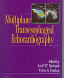 Multiplane Transesophageal Echocardiography Book