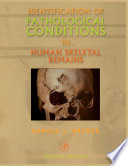 Identification Of Pathological Conditions In Human Skeletal Remains Book PDF