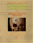 Identification of Pathological Conditions in Human Skeletal Remains [Pdf/ePub] eBook
