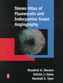 Stereo Atlas of Fluorescein and Indocyanine Green Angiography
