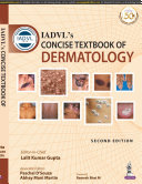 IADVL s Concise Textbook of Dermatology