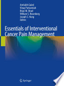 Essentials Of Interventional Cancer Pain Management Book PDF