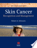 Skin Cancer Book PDF