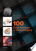 100 Case Reviews in Neurosurgery E Book Book