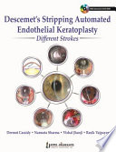 Descemet S Stripping Automated Endothelial Keratoplasty Different Strokes