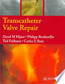 Transcatheter Valve Repair Book