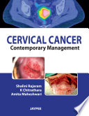 Cervical Cancer Contemporary Management PDF