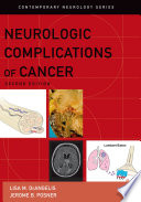 Neurologic Complications of Cancer