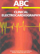 ABC of Clinical Electrocardiography Book