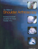 An Atlas of Shoulder Arthroscopy Book