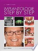 Implantologie Step by Step
