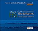 Atlas of Electroencephalography