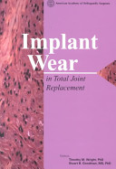 Implant Wear in Total Joint Replacement