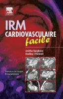 IRM cardiovasculaire facile Pdf/ePub eBook