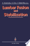 Lumbar Fusion and Stabilization