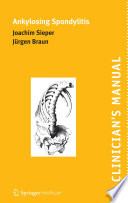 Clinician S Manual On Ankylosing Spondylitis Book PDF