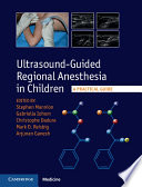 Ultrasound Guided Regional Anesthesia in Children