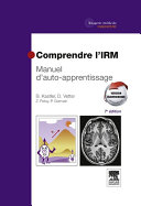 Comprendre l'IRM Pdf/ePub eBook