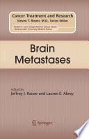 Brain Metastases