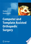 Computer and Template Assisted Orthopedic Surgery