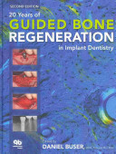 20 Years of Guided Bone Regeneration in Implant Dentistry