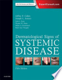 Dermatological Signs of Systemic Disease E Book