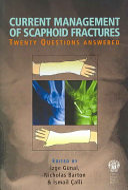 Current Management of Scaphoid Fractures