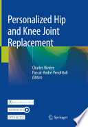 Personalized Hip And Knee Joint Replacement Book PDF