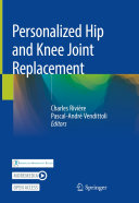 Personalized Hip and Knee Joint Replacement