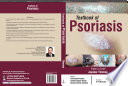 Textbook of Psoriasis Book