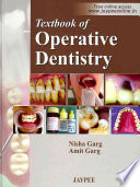 Textbook Of Operative Dentistry Book PDF