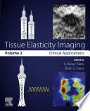 Tissue Elasticity Imaging