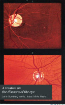 A Treatise on the diseases of the eye Am  Ed