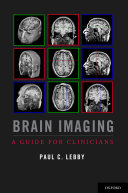 Brain Imaging [Pdf/ePub] eBook