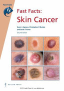 Fast Facts  Skin Cancer