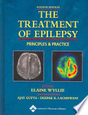 The Treatment Of Epilepsy Book PDF