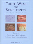 Tooth Wear and Sensitivity