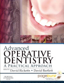Advanced Operative Dentistry