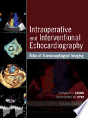 Intraoperative and Interventional Echocardiography